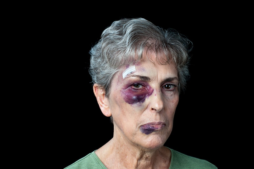 Face Injury Lawyer in Mississippi